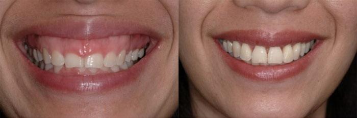 Ai nên phẫu thuật chữa cười hở lợi?