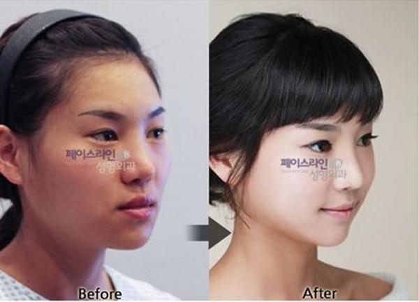 Chùm ảnh: Gương mặt hoàn hảo sau phẫu thuật thẩm mỹ của các cô gái xứ Kim Chi 1