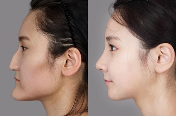 Chùm ảnh: Gương mặt hoàn hảo sau phẫu thuật thẩm mỹ của các cô gái xứ Kim Chi 10
