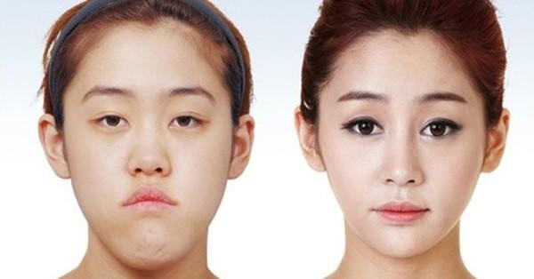 Chùm ảnh: Gương mặt hoàn hảo sau phẫu thuật thẩm mỹ của các cô gái xứ Kim Chi 12