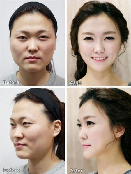 Chùm ảnh: Gương mặt hoàn hảo sau phẫu thuật thẩm mỹ của các cô gái xứ Kim Chi 13