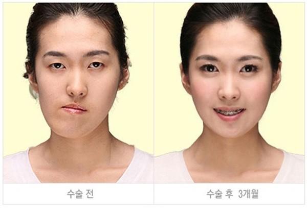 Chùm ảnh: Gương mặt hoàn hảo sau phẫu thuật thẩm mỹ của các cô gái xứ Kim Chi 2