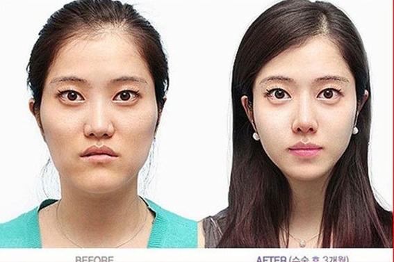 Chùm ảnh: Gương mặt hoàn hảo sau phẫu thuật thẩm mỹ của các cô gái xứ Kim Chi 3
