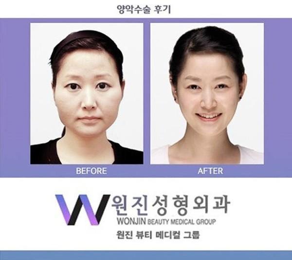 Chùm ảnh: Gương mặt hoàn hảo sau phẫu thuật thẩm mỹ của các cô gái xứ Kim Chi 4