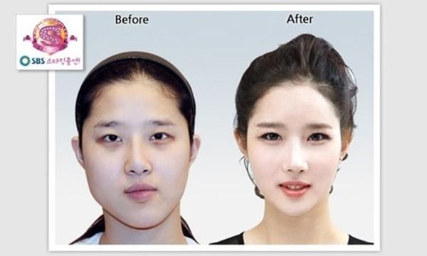 Chùm ảnh: Gương mặt hoàn hảo sau phẫu thuật thẩm mỹ của các cô gái xứ Kim Chi 5