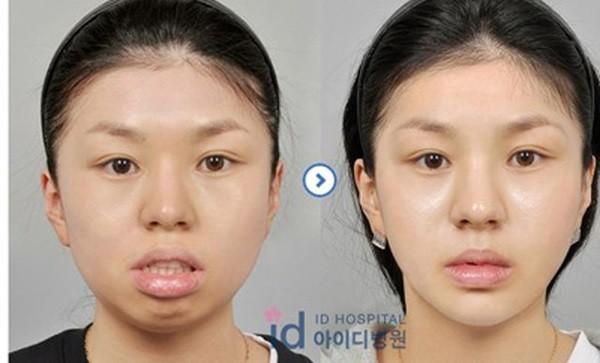 Chùm ảnh: Gương mặt hoàn hảo sau phẫu thuật thẩm mỹ của các cô gái xứ Kim Chi 7