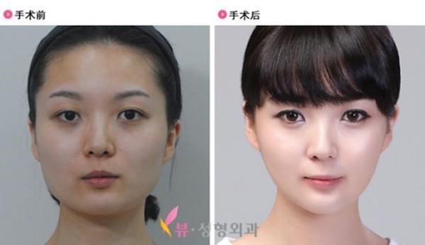 Chùm ảnh: Gương mặt hoàn hảo sau phẫu thuật thẩm mỹ của các cô gái xứ Kim Chi 8