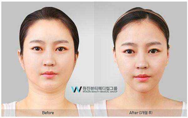 Chùm ảnh: Gương mặt hoàn hảo sau phẫu thuật thẩm mỹ của các cô gái xứ Kim Chi 9