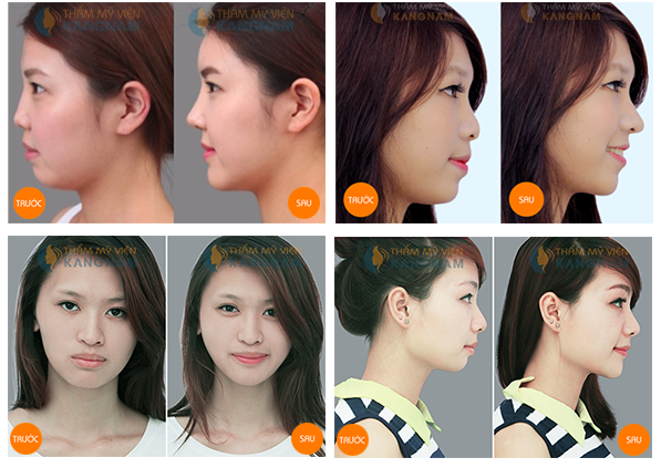 Tại Kangnam độn cằm V-line giá bao nhiêu? 1