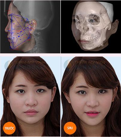 Phẫu thuật Gọt mặt V-line 3D Hàn Quốc 23
