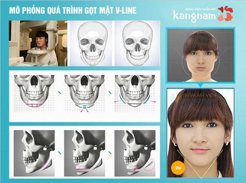Mô hình thẩm mỹ chỉnh hình khuôn mặt tại Kangnam
