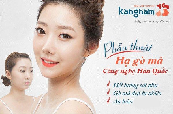 Công nghệ Hạ gò má tại Kangnam đảm bảo an toàn tuyệt đối