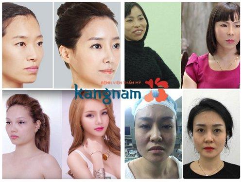 Khách hàng Kangnam chia sẻ hạ gò má có nguy hiểm không