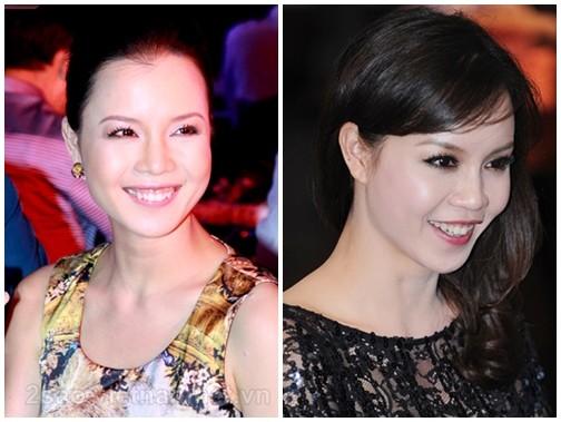 Ngỡ ngàng với nụ cười hở lợi của mỹ nhân Việt 3
