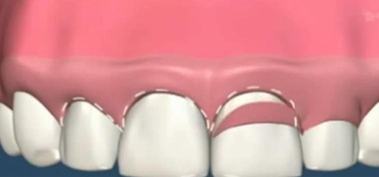 Liệu phẫu thuật chữa cười hở lợi có gây nguy hiểm không? Chuyên gia chia sẻ
