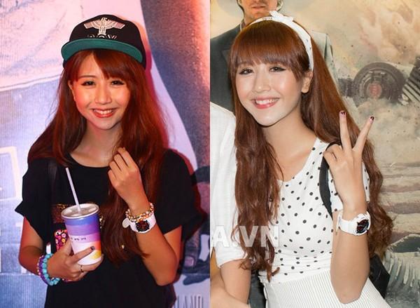 Độn cằm Hàn Quốc - Vẻ đẹp sánh hotgirl  1