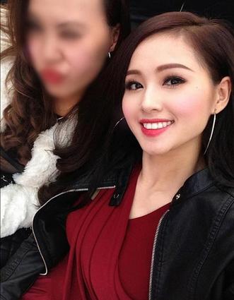Độn cằm Hàn Quốc - Vẻ đẹp sánh hotgirl  2