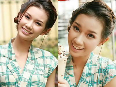 Độn cằm Hàn Quốc - Vẻ đẹp sánh hotgirl  3