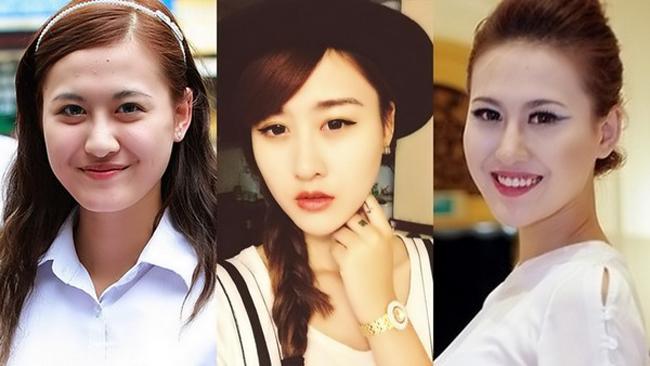 Độn cằm Hàn Quốc - Vẻ đẹp sánh hotgirl  4