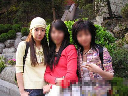 Gọt mặt giống sao Hàn – Xu hướng làm đẹp của giới trẻ 4