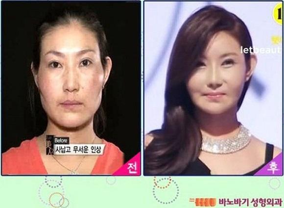 Gọt mặt giống sao Hàn – Xu hướng làm đẹp của giới trẻ 8