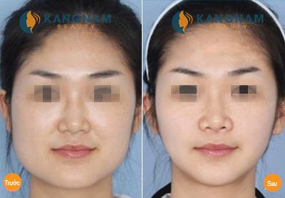 Thẩm mỹ khuôn mặt - Xu thế thẩm mỹ được ưa chuộng năm 2014 8