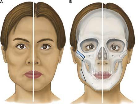 """3 phương pháp thẩm mỹ khuôn mặt được nhiều người """"mê"""" nhất 1"""