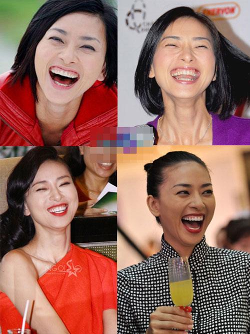 """Những nụ cười hở lợi kém duyên """"dìm hàng"""" sao Việt 1"""