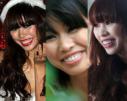 """Những nụ cười hở lợi kém duyên """"dìm hàng"""" sao Việt 3"""