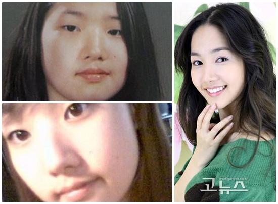 Thẩm mỹ khuôn mặt đẹp toàn diện theo phong cách Hàn Quốc 1