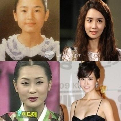 Thẩm mỹ khuôn mặt đẹp toàn diện theo phong cách Hàn Quốc 2