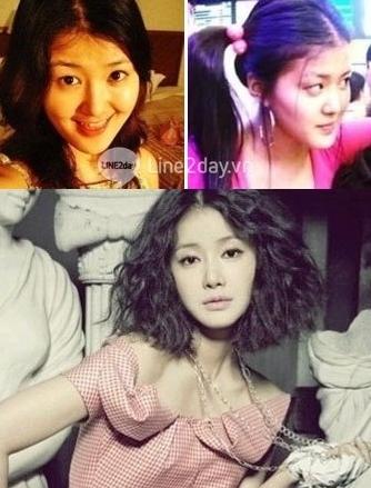 Thẩm mỹ khuôn mặt đẹp toàn diện theo phong cách Hàn Quốc 3