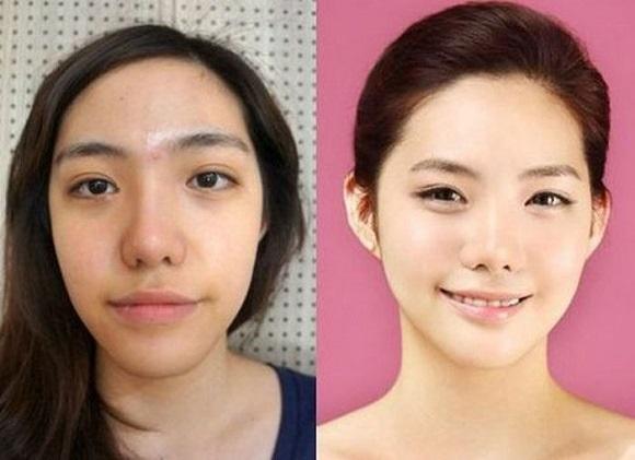 Thẩm mỹ khuôn mặt đẹp toàn diện theo phong cách Hàn Quốc 6