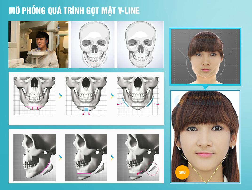 Phải làm sao để khuôn mặt nhỏ lại nhanh? 2