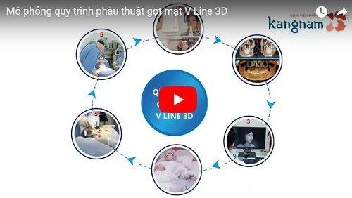 Click xem thêm mô phỏng video về quá trình phẫu thuật gọt hàm