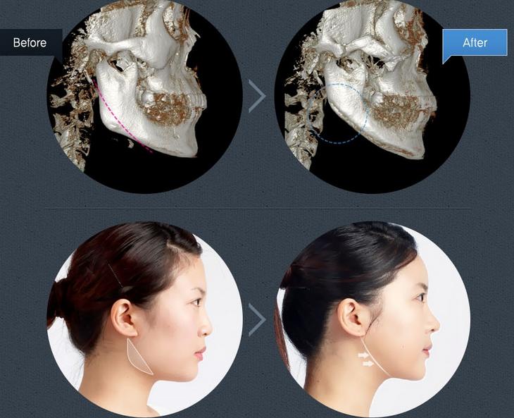 Thẩm mỹ khuôn mặt V line được thực hiện như thế nào?
