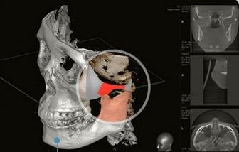 Mô phỏng quá trình thẩm mỹ khuôn mặt V line 3D