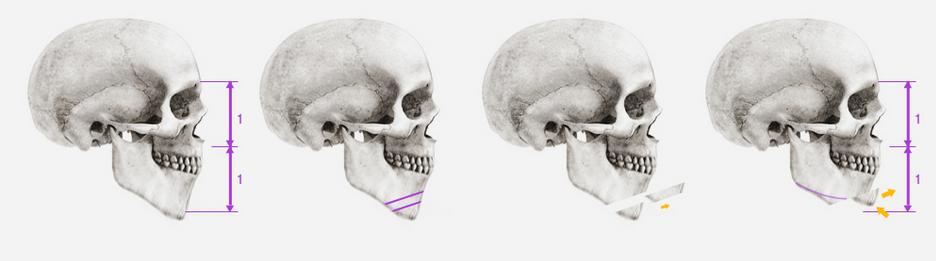 Liệu phẫu thuật thẩm mỹ khuôn mặt V line có đảm bảo an toàn?