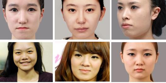 Ai nên chọn phẫu thuật gọt mặt nội soi?