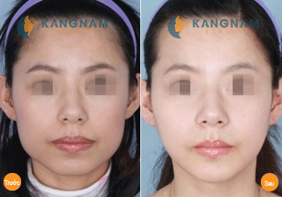 Tất tần tật về phương pháp gọt mặt nội soi Hàn Quốc 4