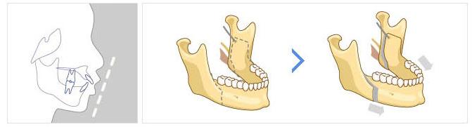 Cận cảnh quá trình phẫu thuật hàm hô móm