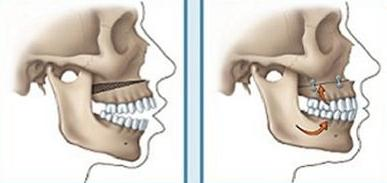 Quy trình phẫu thuật xương hàm tại Kangnam