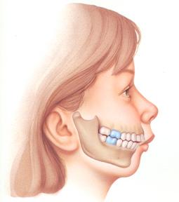 Giải đáp thắc mắc về phẫu thuật chỉnh hàm hô 2