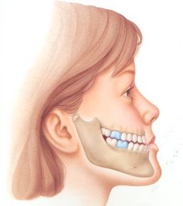 Khi nào cần phẫu thuật chỉnh hàm hô móm? 1