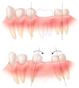 Khi nào cần phẫu thuật chỉnh hàm hô móm? 2