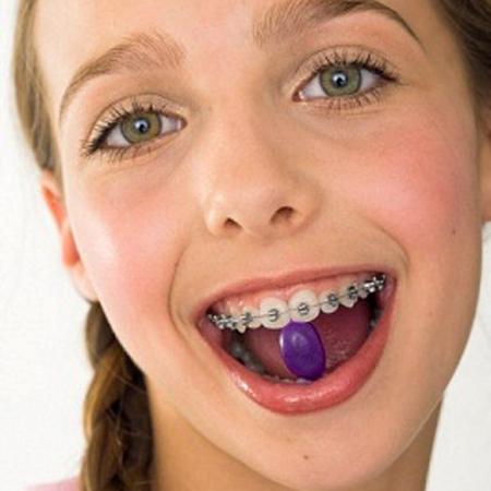 Tự tin hết hô móm không cần niềng răng chỉ 1 lần điều trị 2
