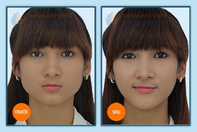 Giải đáp làm thế nào để có khuôn mặt đẹp? 3