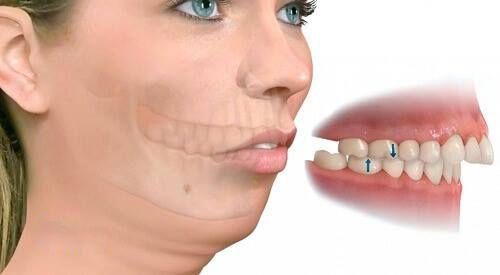 Bị hô nên niềng răng hay tiến hành phẫu thuật?1