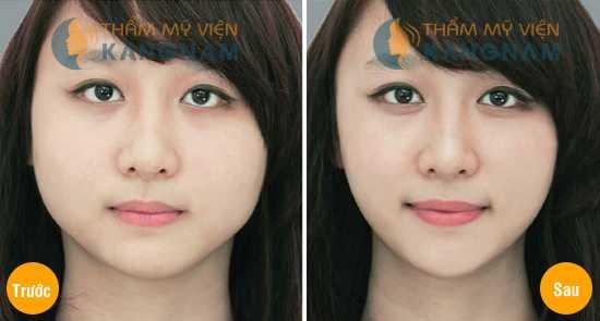 Cách chăm sóc sau thẩm mỹ khuôn mặt 2