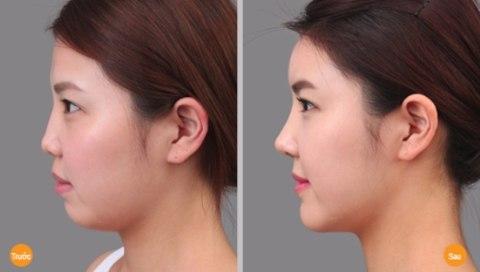 Cách massage cho gương mặt thon và cằm dài cuốn hút 5